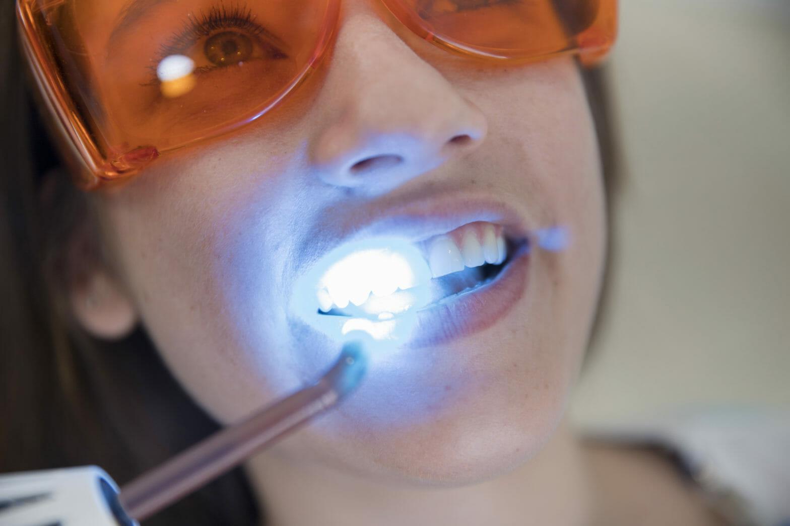 Dental Laser Treatment
