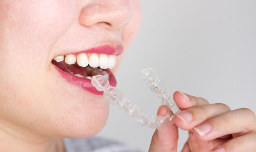 Invisalign Treatment - Dentist in Dallas TX 75219